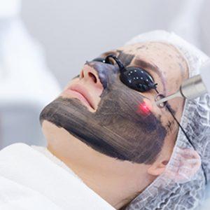 Carbon Laser Peeling